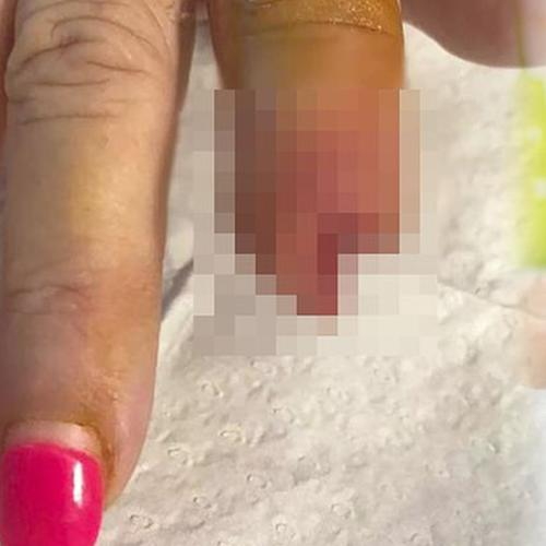 Melbourne Woman Forced To Have Finger Cut Off