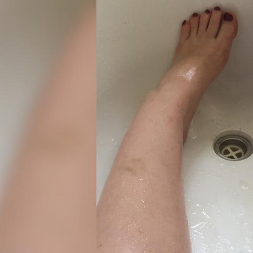 Aussie Woman Stuck in Bath After Using Beauty Product